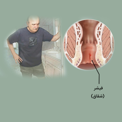 درمان قطعی و فوری شقاق(فیشر) مقعدی با لیزر در یک جلسه بدون درد، خونریزی و نیاز به بستری