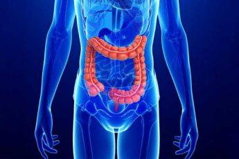 بیماری کرون چیست؟ انواع، علائم، نحوه تشخیص و روش های درمان آن