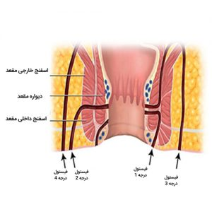 [عکس: Types-of-fistulas-300x300.jpg]