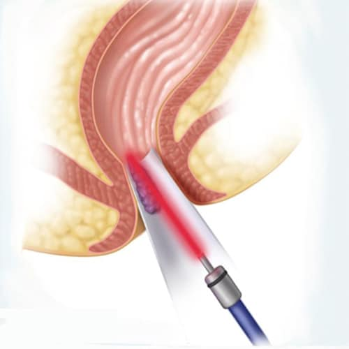 [عکس: hemorrhoid-treatment-with-laser.jpg]