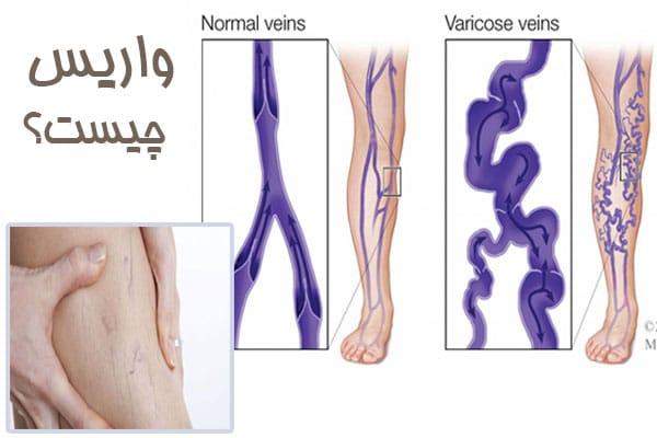 بیماری واریس چیست؟ چه علائمی دارد و چگونه درمان میشود؟