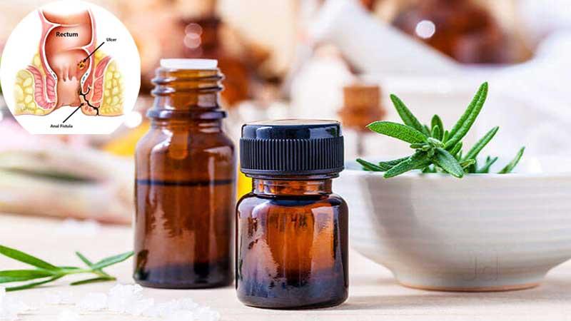 آیا درمان فیستول مقعد با دارو امکان پذیر است؟