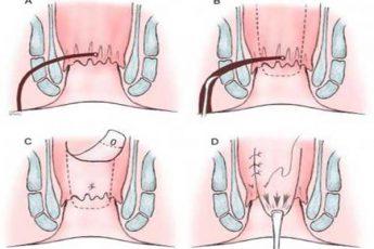 جراحی فیستول به روش فیستولومی