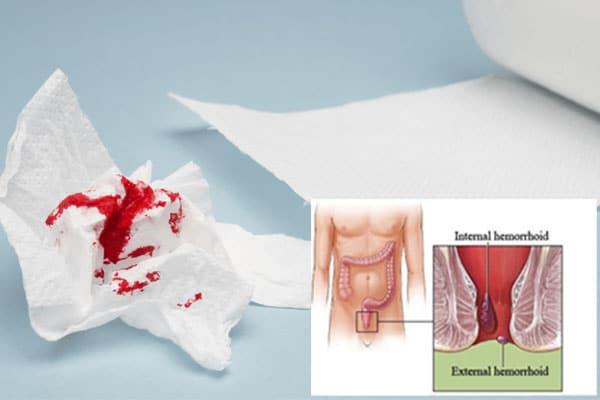 علائم بواسیر خونی و بهترین روشهای درمان این بیماری