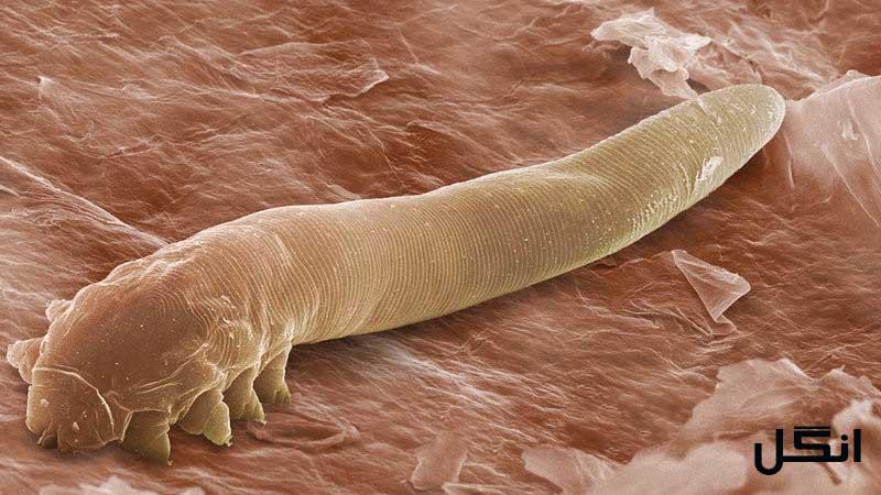 علائمی که وجود انگل در بدنمان را نشان میدهند !