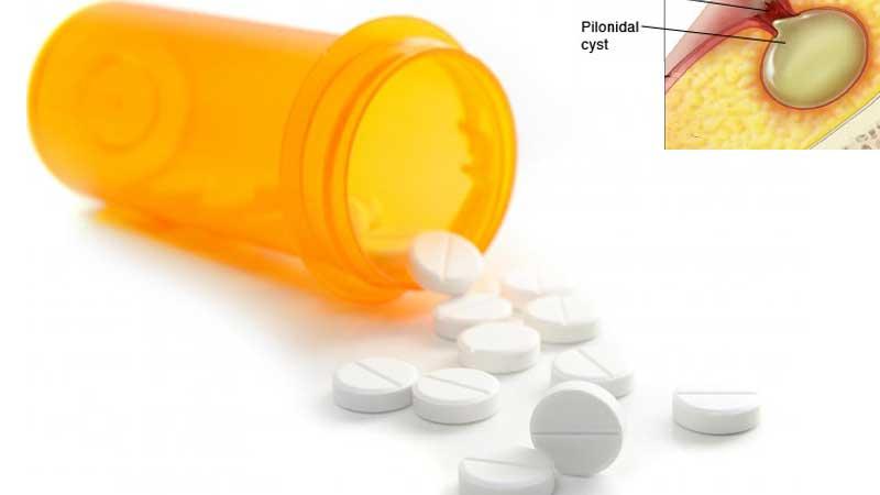 درمان کیست مویی یا سینوس پیلونیدال با دارو