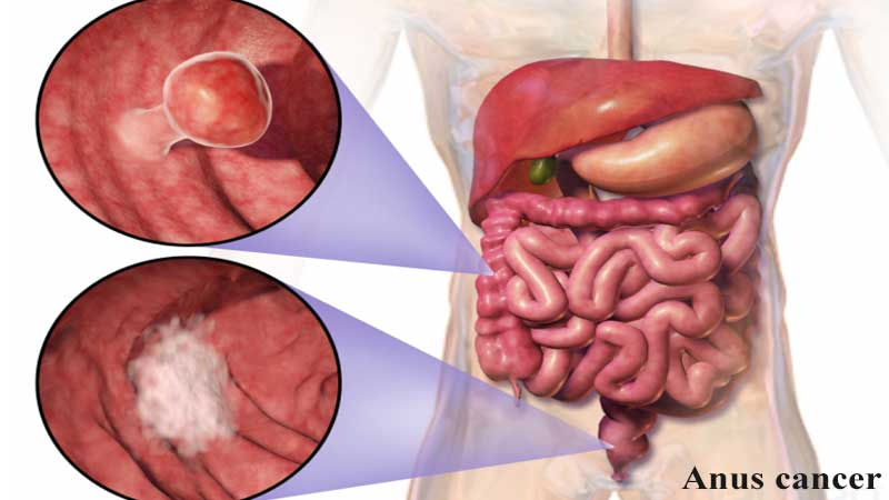 مهمترین علائم سرطان مقعد چیست و چگونه تشخیص داده میشود؟