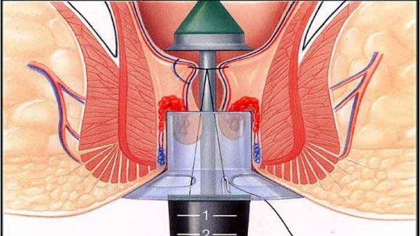 درمان بواسیر با استاپلر