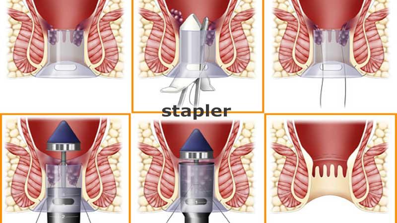 درمان هموروئید با استاپلر یا هموروئیدوپکسی و عوارض آن