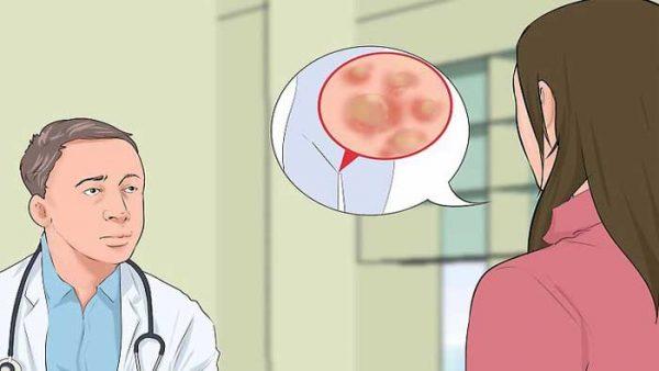 تشخیص و درمان زگیل تناسلی