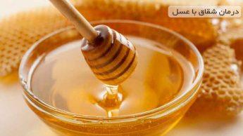 نحوه درمان شقاق با عسل به روش سنتی