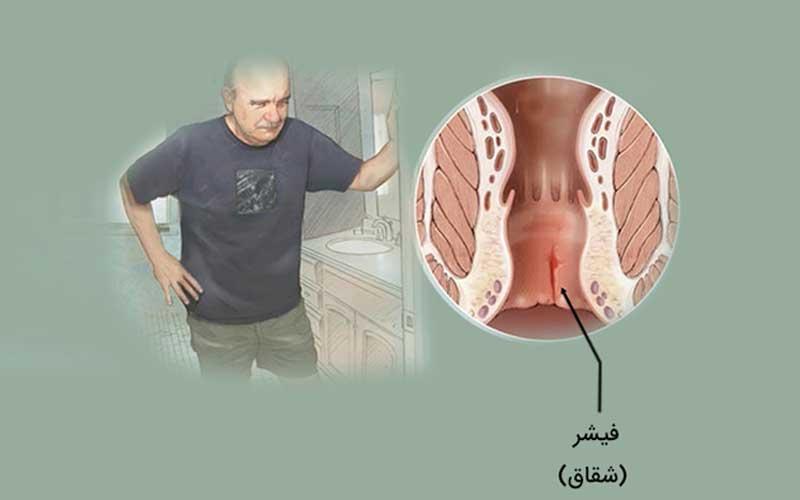 درمان شقاق با لیزر (فیشر مقعدی) بدون نیاز به بستری
