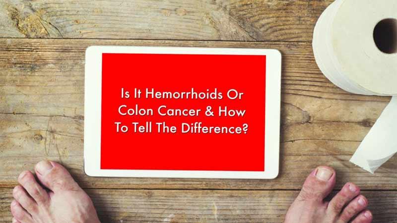 چه رابطهای بین بواسیر یا هموروئید و سرطان روده وجود دارد؟